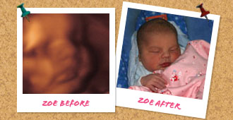 Before and after ultrasound images